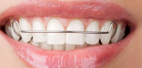 Retainer Instructions - Bedford Orthodontics | Bedford NS
